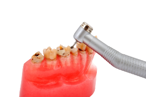 Frequent Questions about Dental Crown Procedures