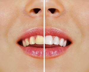smiling patient cross-section, left side shows teeth before tooth whitening treatment, right side shows white teeth after treatment