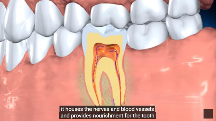 graphic depicting interior of tooth's root canal video