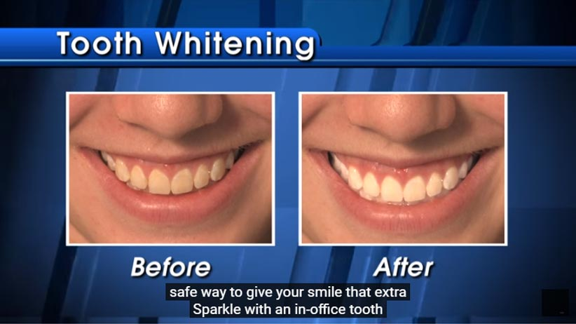 images depicting smiles before and after tooth whitening treatment