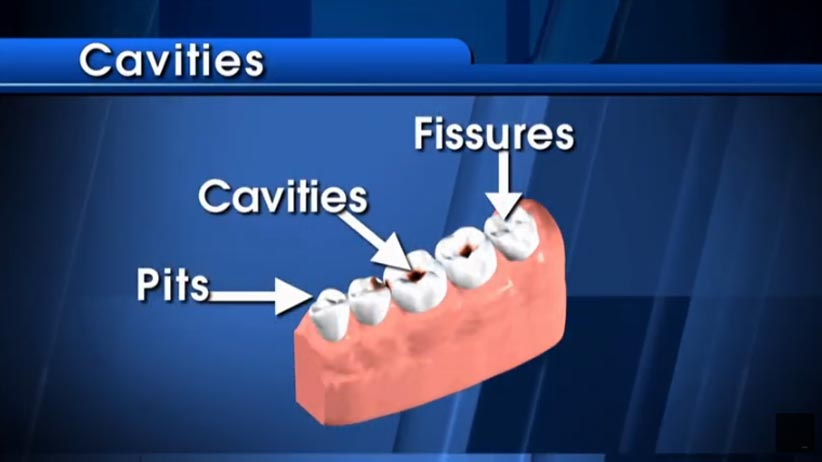graphic depicting cavities in tooth click to see video