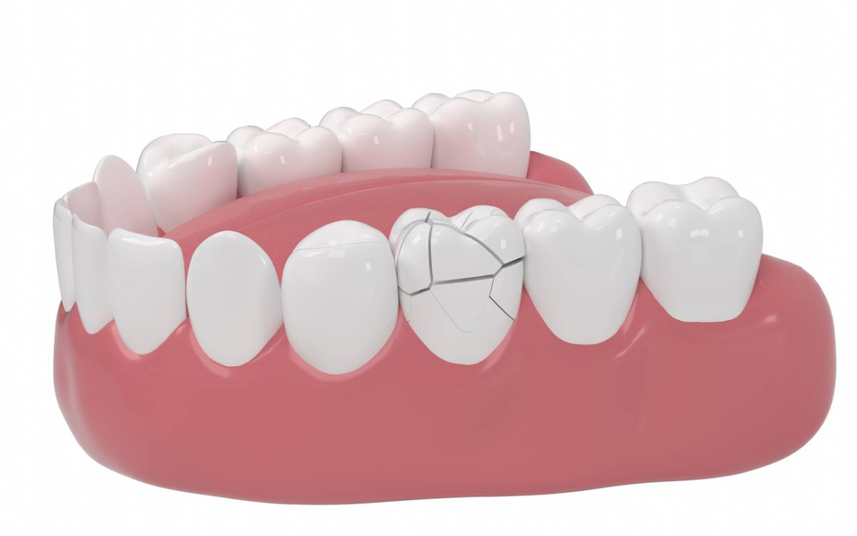 computer generated graphic depicting teeth, one of which is cracked and falling apart