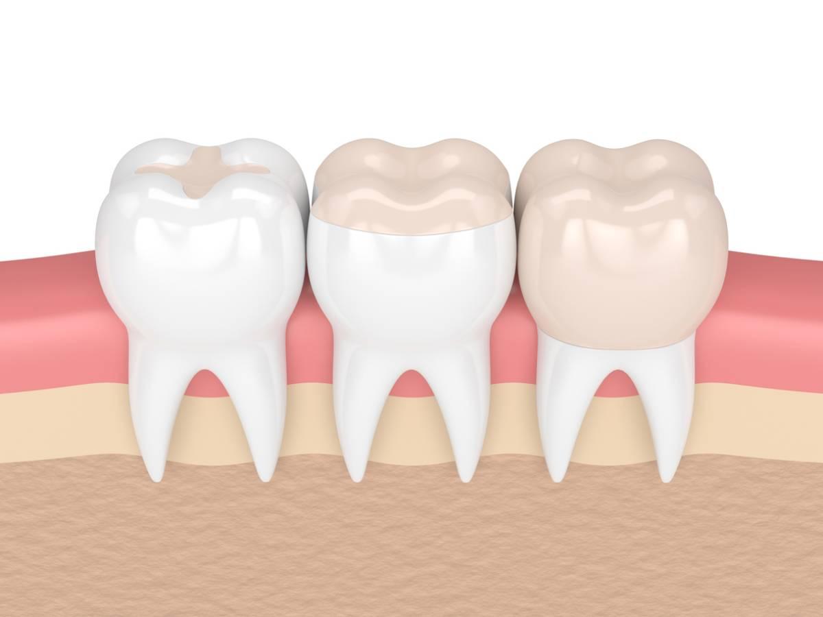 Illustration showing dental bonding and fillings.